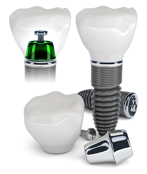 Implant Dentist in North Las Vegas