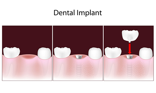 North Las Vegas Dental Implants